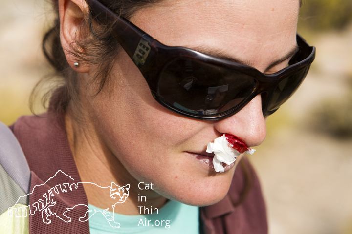 Cintia Tellaeche has a bloody nose from the effects of high altitude, northwestern Argentina